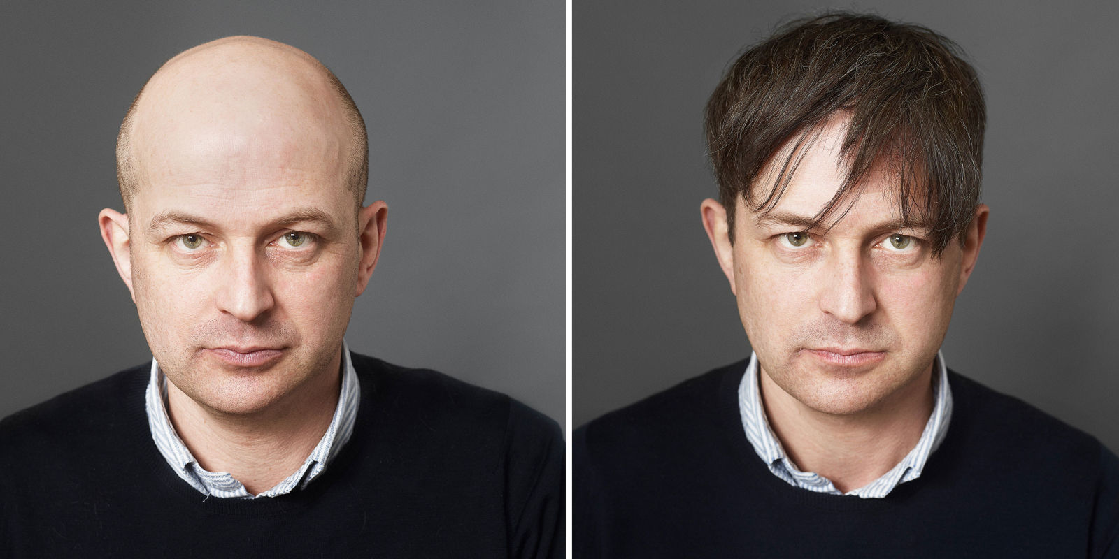 What balding vs shaved head her